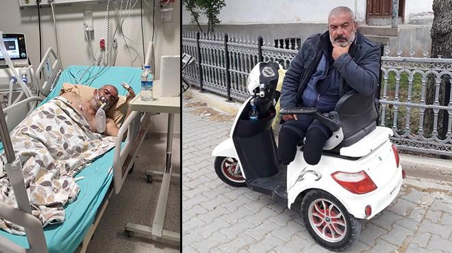 İki bacağını kaybetti, hayata küsmedi... Koronavirüsten öldü