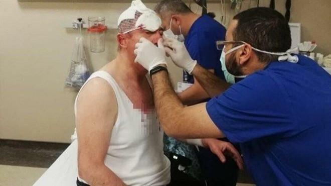 Selçuk Özdağ'a saldırı olayında 4 gözaltı daha