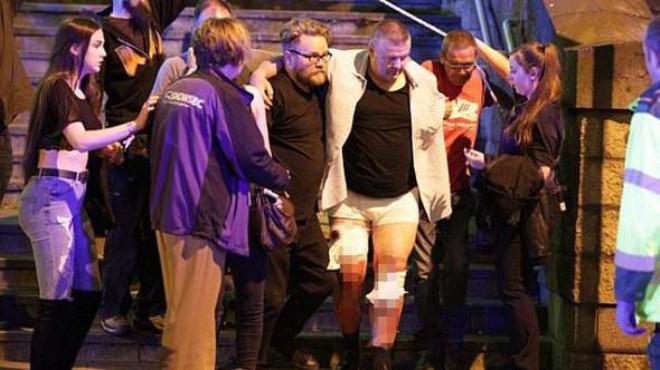 Terör Bu kez İngiltere'yi Vurdu: 19 Ölü, 59 Yaralı
